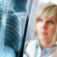 Az influenza gyakori és igen súlyos szövődménye a tüdőgyulladás