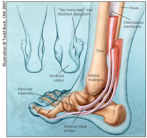 Posterior tibial tendon.jpg