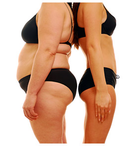 before-and-after-weight-loss-woman.jpg
