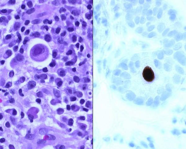 Cytomegalovírus vastagbélben