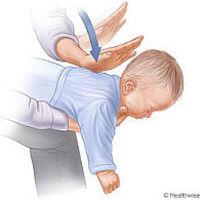 Légúti akadály csecsemő- és gyermekkorban