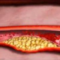 Angina pectoris és infarktus videók