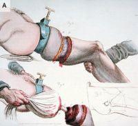 A sebészet 200 éve egy kis horrorral fűszerezve