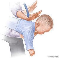 Légúti akadály csecsemő- és gyermekkorban - Elsősegély Blog