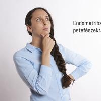 Van-e kapcsolat az endometriózis és a petefészekrák kialakulása között?