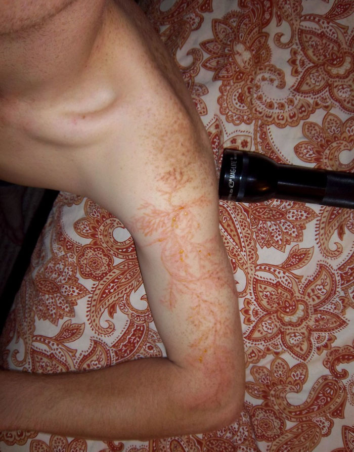 scars-after-surviving-lightning-strike-lichtenberg-figures-photos-11-5b6d30e490d95_700.jpg