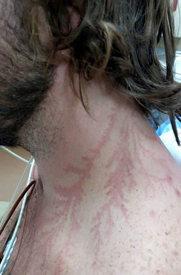 scars-after-surviving-lightning-strike-lichtenberg-figures-photos-12-5b6d30e63a74b_700.jpg