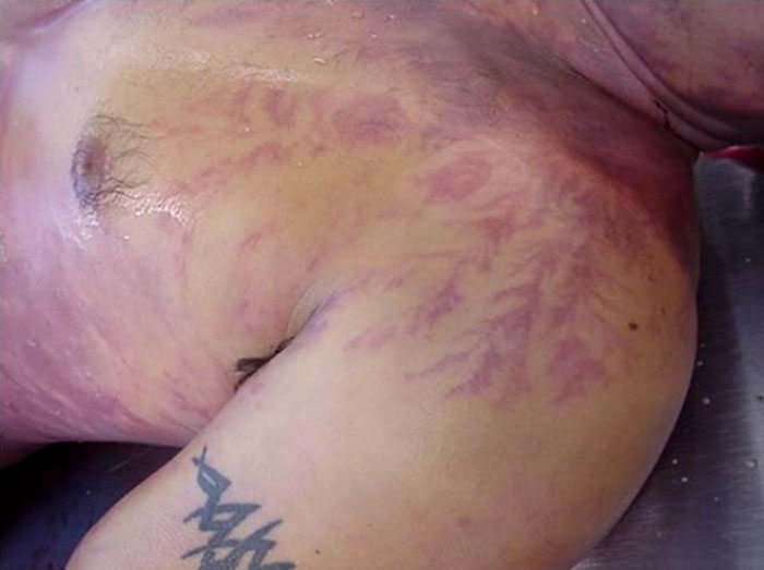 scars-after-surviving-lightning-strike-lichtenberg-figures-photos-13-5b6d30e7ba247_700.jpg