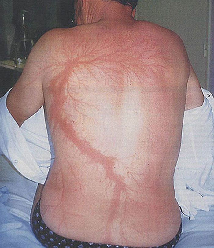 scars-after-surviving-lightning-strike-lichtenberg-figures-photos-17-5b6d30af76710_700.jpg