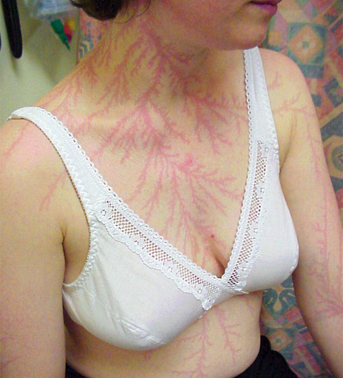 scars-after-surviving-lightning-strike-lichtenberg-figures-photos-18.jpg