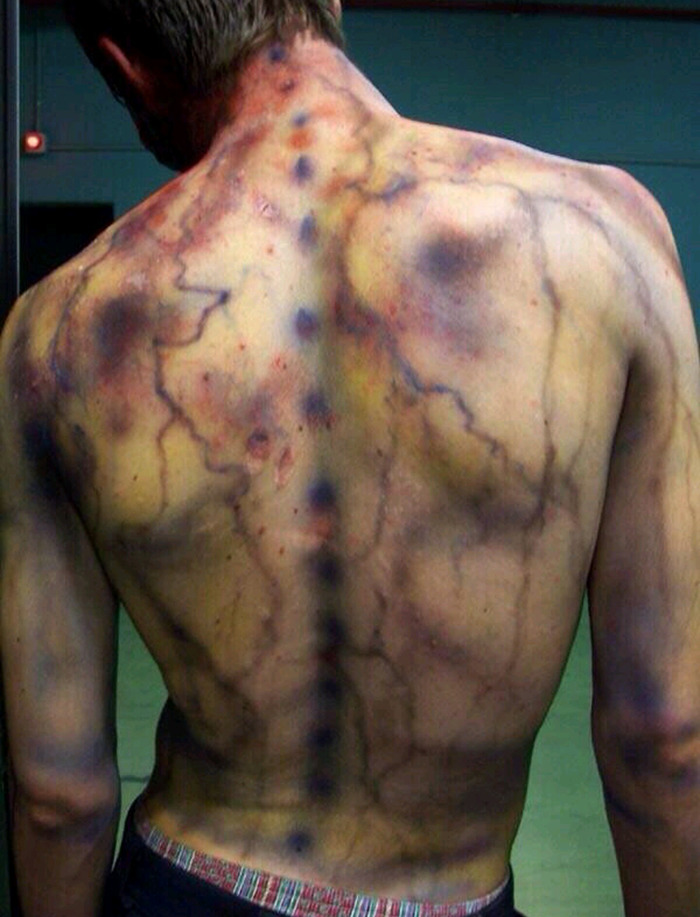 scars-after-surviving-lightning-strike-lichtenberg-figures-photos-20-5b6d30923278e_700.jpg