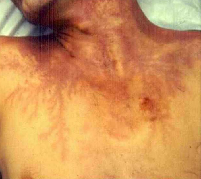 scars-after-surviving-lightning-strike-lichtenberg-figures-photos-6-5b6d31659801a_700.jpg