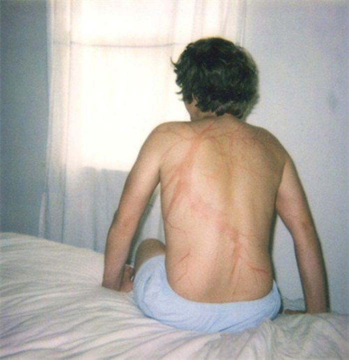 scars-after-surviving-lightning-strike-lichtenberg-figures-photos-8-5b6d30dfb628a_700.jpg
