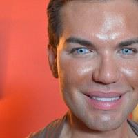 Leeshet az orra a plasztikai műtét függő férfinak