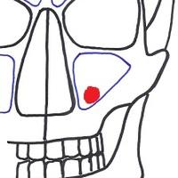 Az arcüreg Luc-Caldwell műtéte