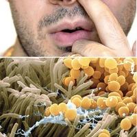 Tünetmentes Staphylococcus aureus hordozás orrban, garatban