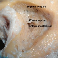 EAONO2012 - Kifúrt temporalis csont