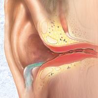 Nyári fül- orr- gégészeti megbetegedések