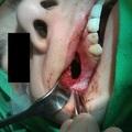 Luc-Caldwell műtét képen