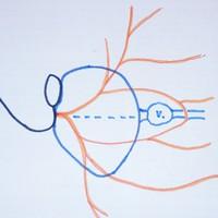 Új klasszifikáció a parotidectomiákhoz