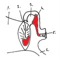 Az idült középfülgyulladás kezelése