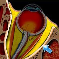 Szemgödörbe törő melléküreggyulladás kezelése