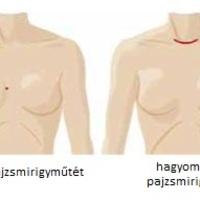 Hegmentes daVinci pajzsmirigyműtét, (TARS) Trans Axillary Robotic Surgery