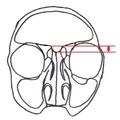 Mélyre belógó elülső koponyagödör (Keros-féle beosztás FESS műtéthez)