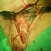 Klasszikus necrotizáló fasciitis műtéti lelete fotón