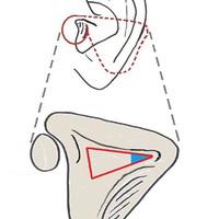 A Citelli szöglet és a Trautmann háromszög
