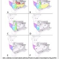 Transnasalis Endoscopos Partialis Maxillectomia (TEMP) beosztás a műtét kiterjesztése alapján