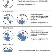 A traumás dobhártya-perforációk felosztása a méret-gyógyhajlam alapján