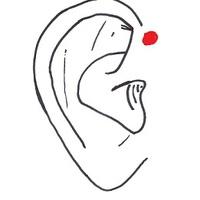 Preauricularis fistula - fül előtti sipoly