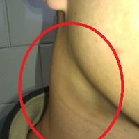 Mononucleosis képekben