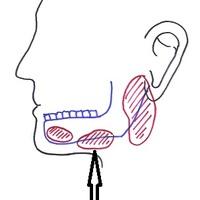 Submandibularis nyálmirigy eltávolítás javallatai