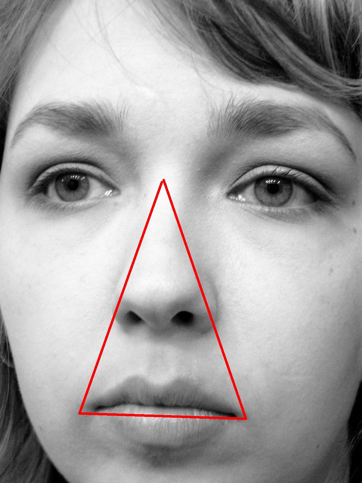 Danger_triangle_of_the_face_diagram.jpg