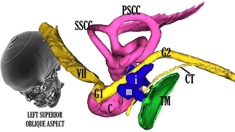 facial nerve 2.jpg