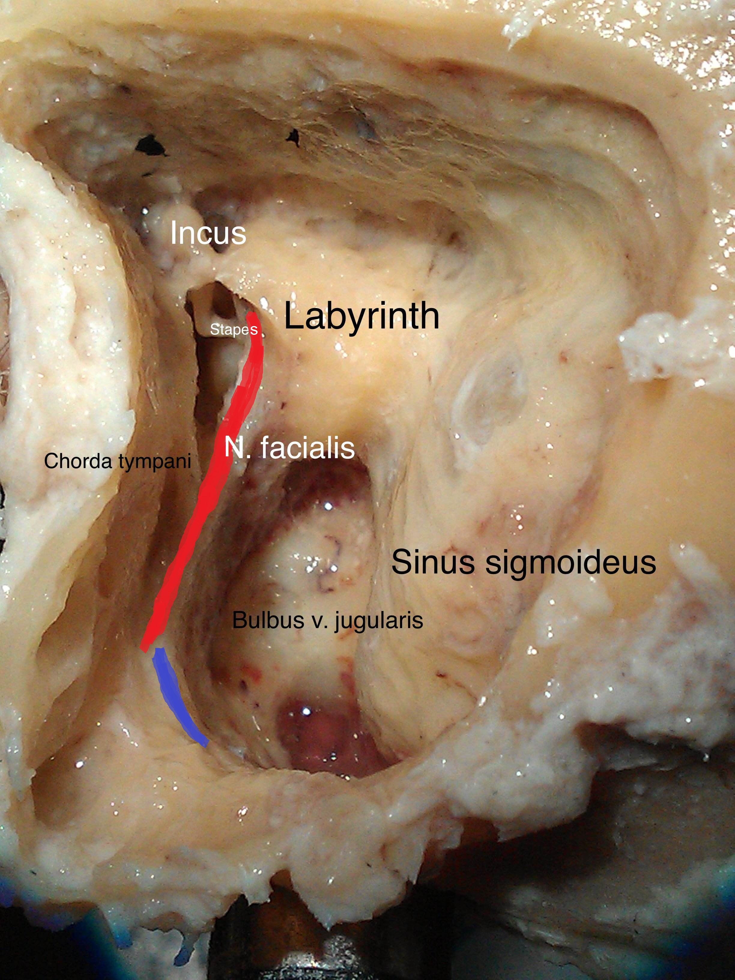 facial nerve temporal bone.jpg