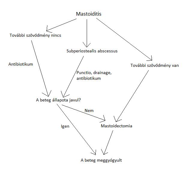 Mastoidits treatment.png