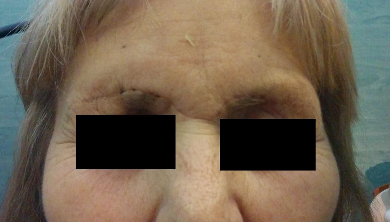 osteoplastic_face.jpg