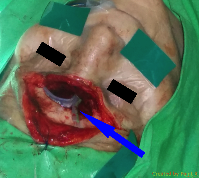 osteoplastic_frontal_sinus_surgery_3.png