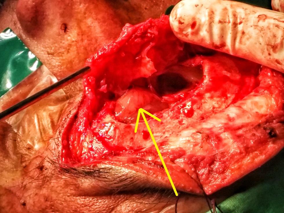 frontal_sinus_osteoma.jpg
