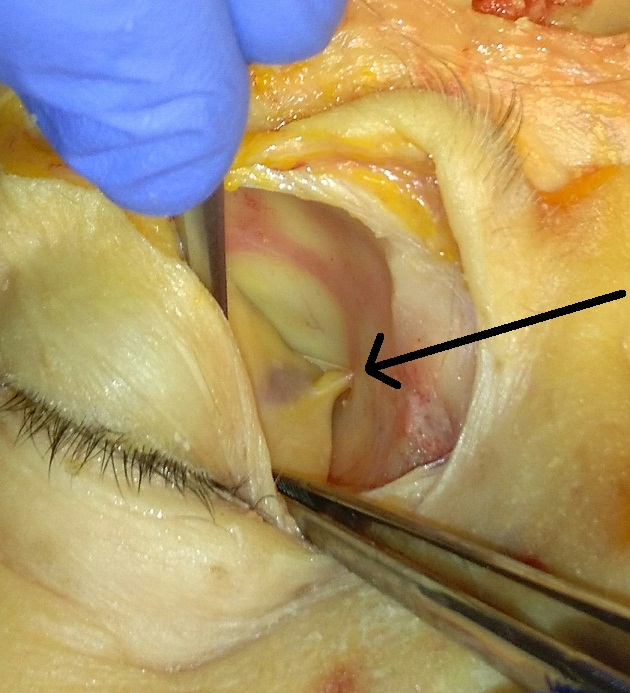 anterior_ethmoidal_artery.jpg
