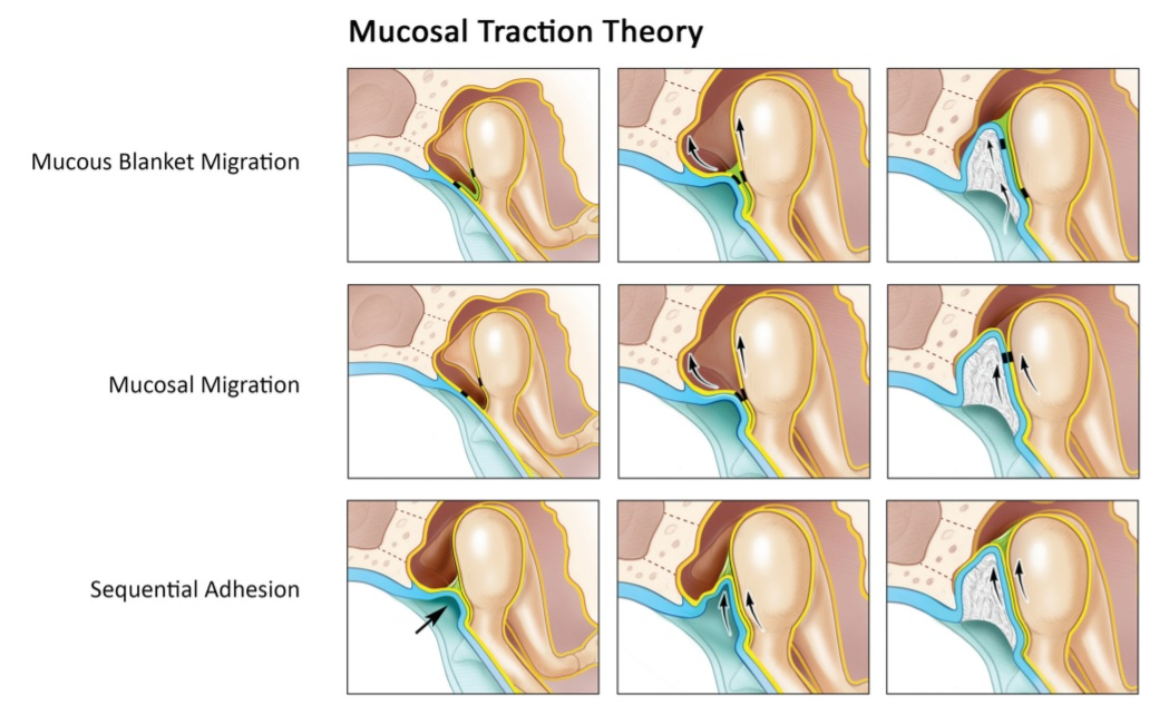 cholesteatoma_pathogenesis_theories_mucosal_traction.jpg