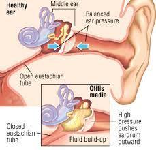 adenoid-otitis.jpg