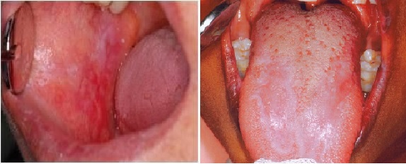 oralis lichen planus.jpg
