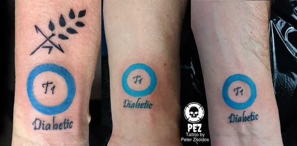 Életmentő tetoválást készítenek magyar tetoválók! #értékesötletek