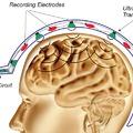 Epilepsziás roham visszaszorítása Anderson lokalizációval