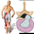 Gerincfájdalmak és sérülések kezelése + Kettlebell Gazetta Augusztus