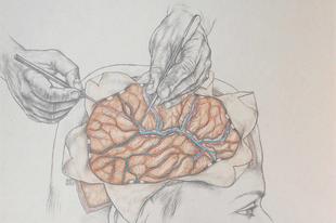 Elemér, Edömér és Balambér, avagy a zseniális agysebész dilemmája
